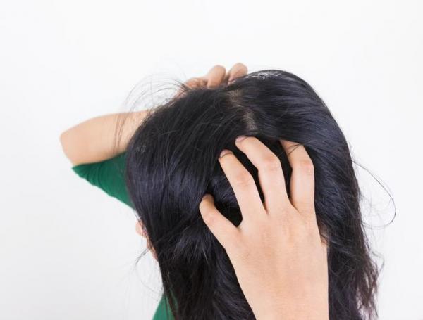 Cómo detener la sudoración excesiva de la cabeza