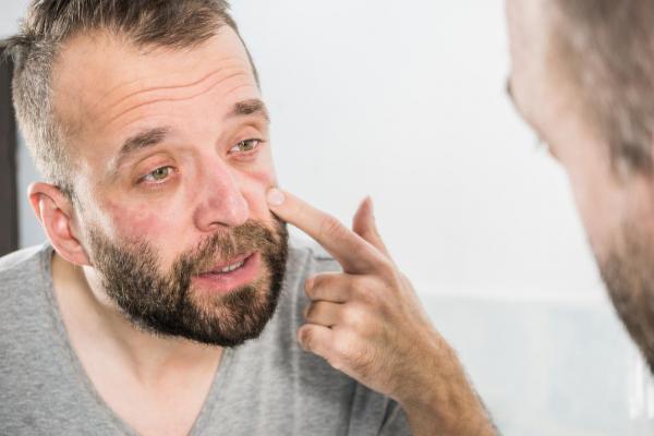 Tipos de ojeras debajo de los ojos - 3. Ojeras relacionadas con la edad